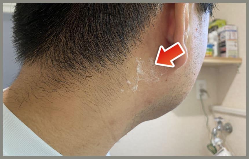 ホロベルの洗い残し耳の後ろ